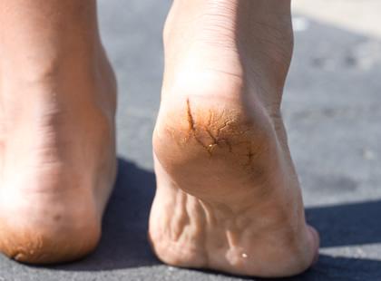 why do my feet crack on the heel